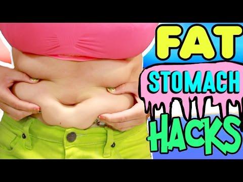 súlycsökkentő táborok morbidly elhízott felnőttek számára
