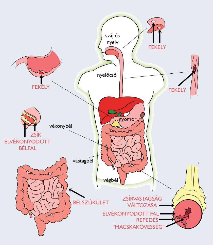 Mi a Crohn betegség?