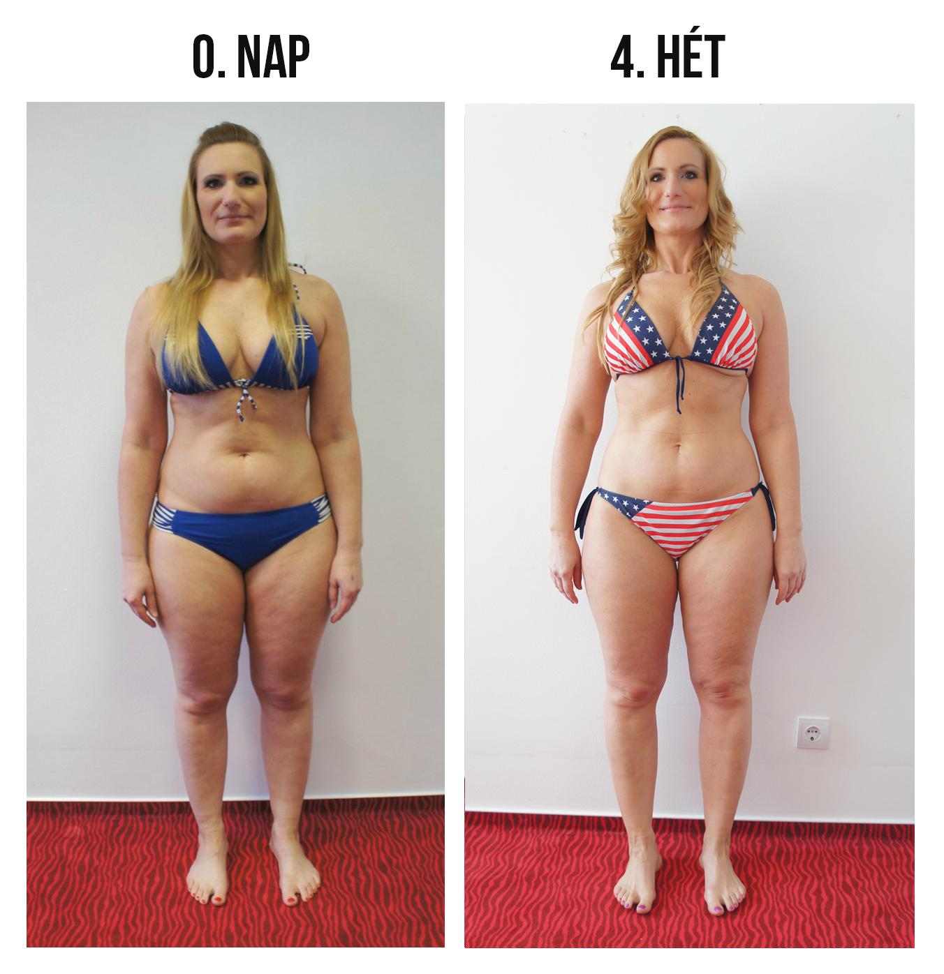 fogyás cellulit a túlzott testsúlycsökkenés meghatározása
