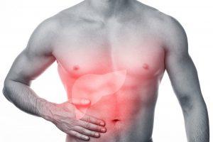 Zsírmáj 5 oka, 7 tünete, 6 kezelési módja + 16 diéta tipp