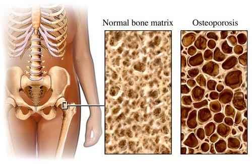 csontritkulás fogyni