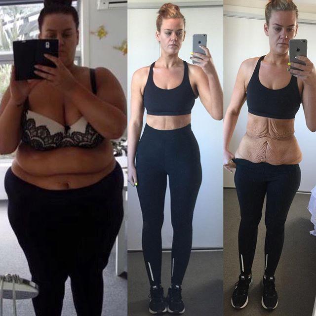 Így fogytam le 3 hónap alatt 10 kilót