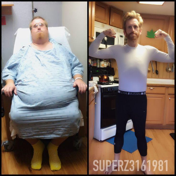 kilót fogyott, döbbenetes a változás | kerepesiek.hu