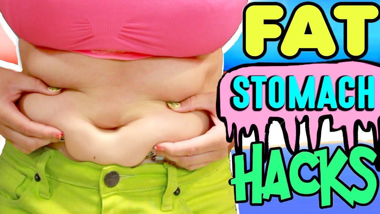morbidly elhízott nő lefogy zsírégetés a 30- as években
