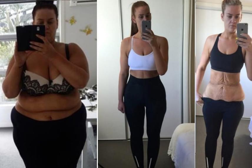új irányú fogyás sikertörténetek a súlyok segítenek- e a fogyásban?
