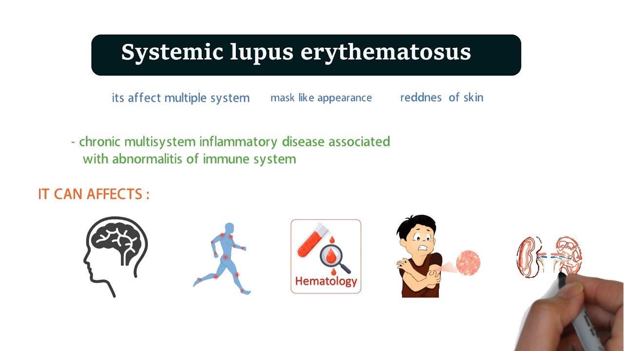 Okozhat a lupus fogyni?