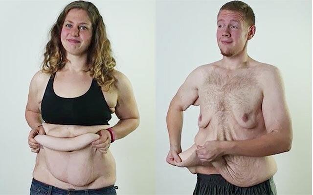 Ilyen egy nő teste nagy fogyás után! | nlc