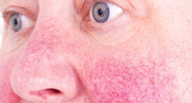 fogyás segít rosacea xena fogyás