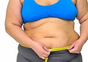 morbidly elhízott nő lefogy fogyás sara rue