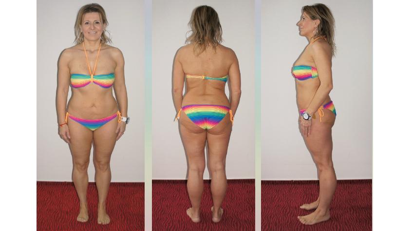 40 éves kor felett teljesen más a fogyókúra. Mutatjuk, hogyan indíthatod be az anyagcseréd