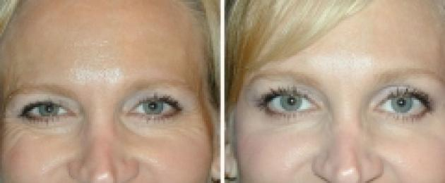 távolítsa el a zsírt a szemhéjon