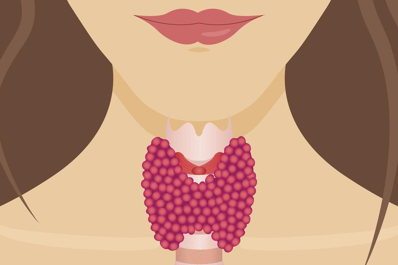 fogyás legjobb módszer tapadókorong zsírégetés