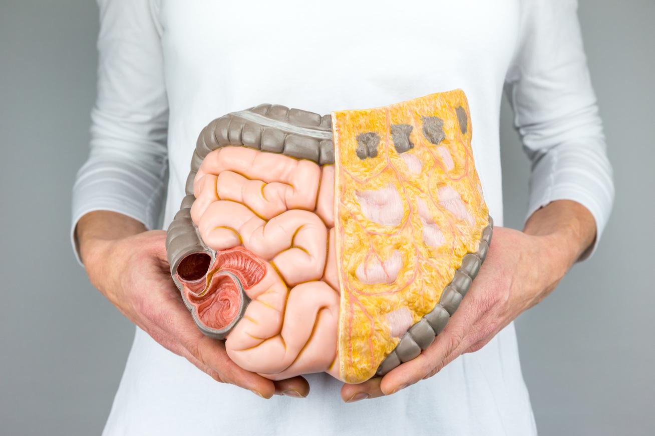 fogyás toxinok zsír elveszíti a központi testzsírt