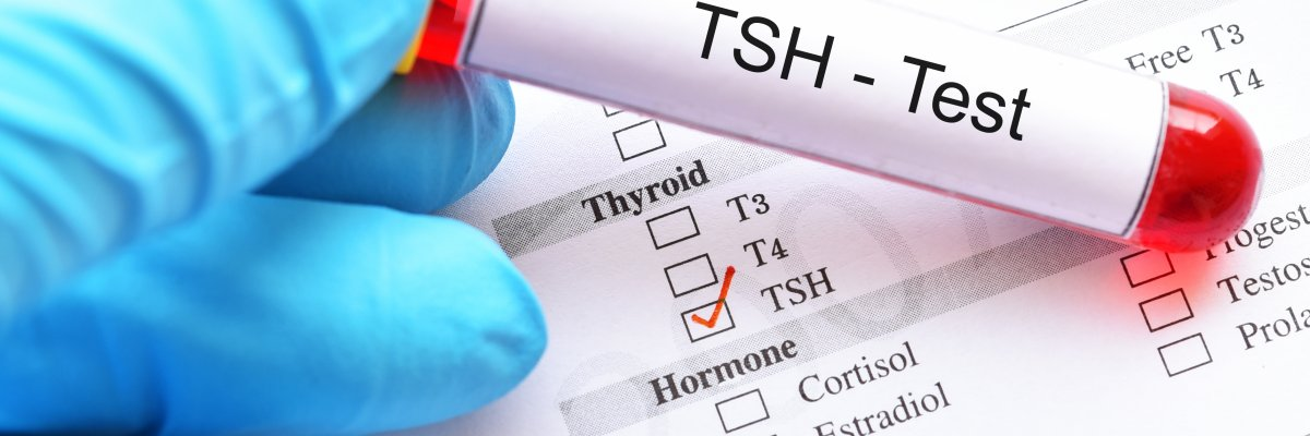 Pajzsmirigy-túlműködés tünetei és kezelése