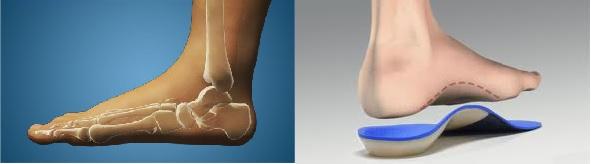 fogyás szalagok a lábujjak