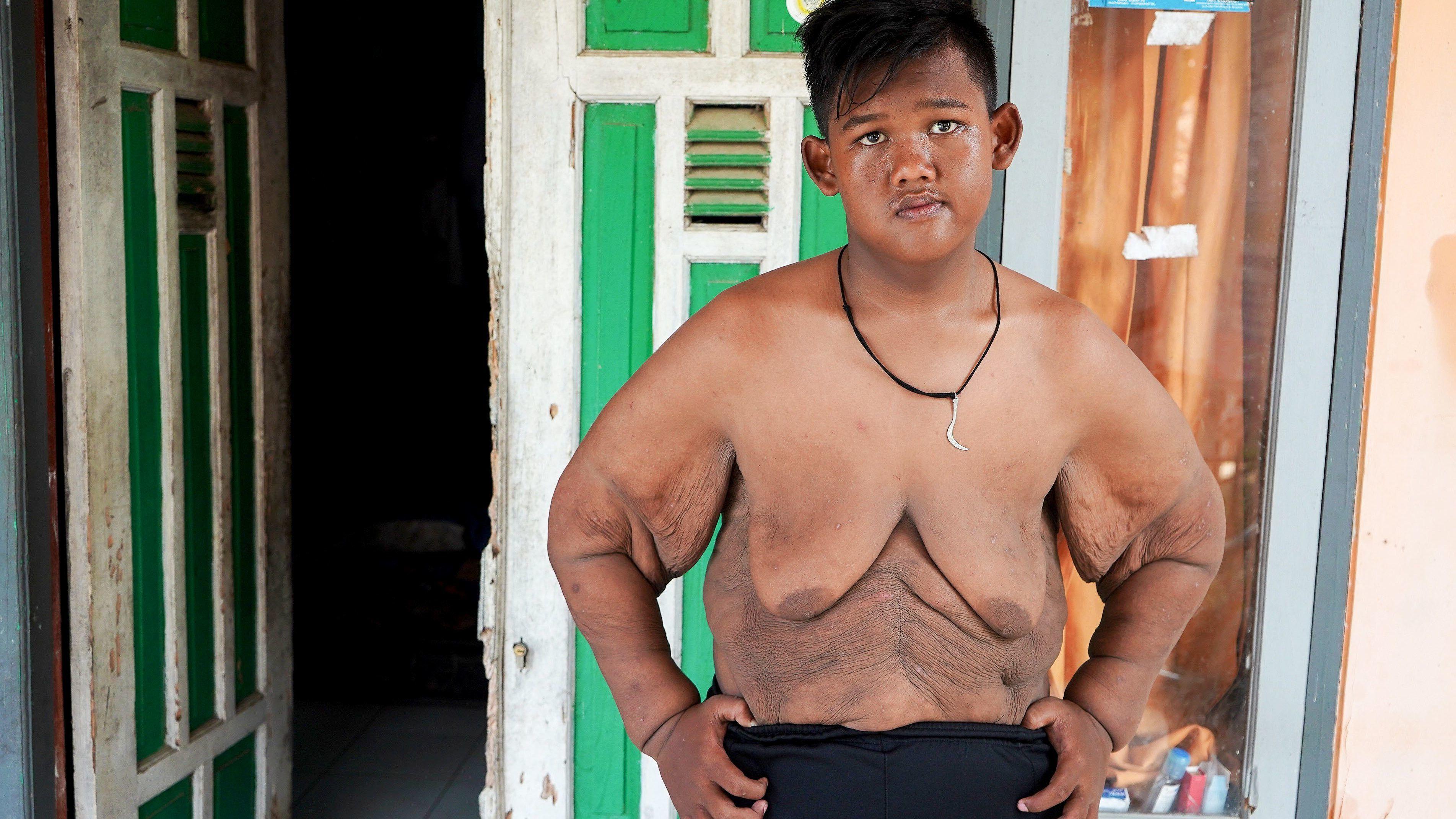 fogyni 2 hét alatt a férfi egészség