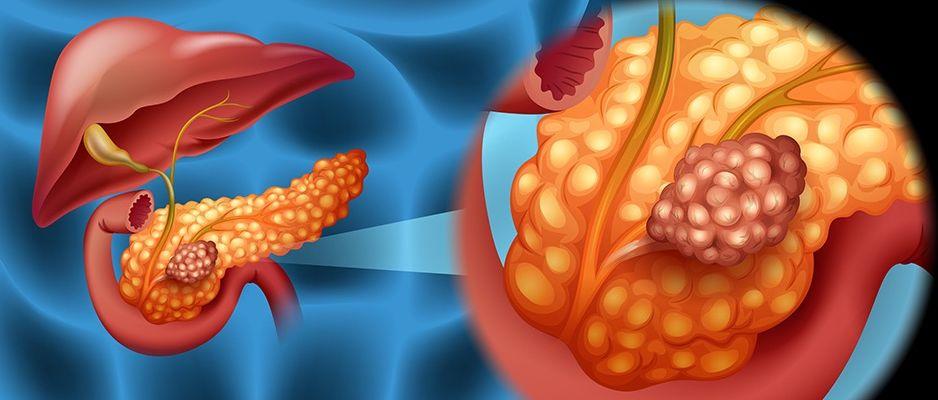 Limfóma – Időben felismerve gyógyítható